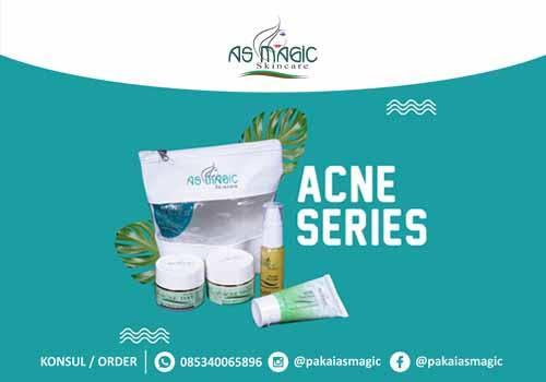 Distributor as magic skincare Indonesia - Acne Series
